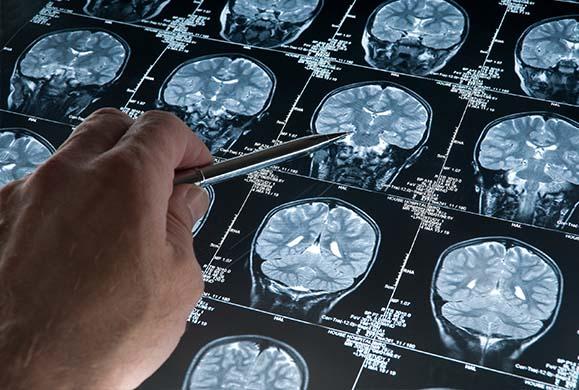 Ουσία στο αίμα «προδίδει» την προδιάθεση στο Αλτσχάιμερ
