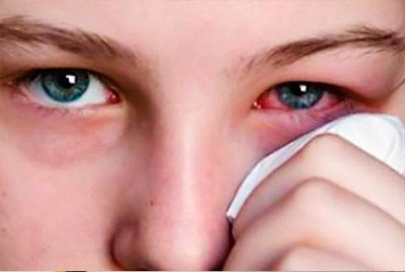 Τι προκαλεί την ερυθρότητα του ματιού και τι πρέπει να κάνετε