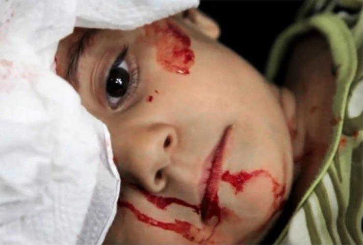 UNICEF:  250 εκατομμύρια παιδιά ζουν σε εμπόλεμη ζώνη