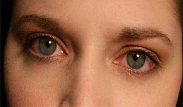 Ραγοειδίτιδα: Αίτια και συμπτώματα της άγνωστης και επικίνδυνης νόσου των ματιών